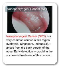 Nasopharyngeal Cancer (NPC) Nasopharyngeal Cancer (NPC) is a very common cancer in this region (Malaysia, Singapore, Indonesia).It arises from the back portion of the nose. Early detection is crucial in the successful treatment of this cancer...