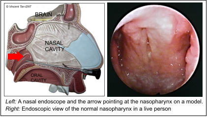 Left: A nasal endoscope and the arrow pointing at the nasopharynx on a model.  Right: Endoscopic view of the normal nasopharynx in a live person  NASAL CAVITY ORAL CAVITY BRAIN BRAIN © Vincent Tan ENT