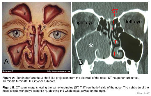 Figure A: 'Turbinates' are the 3 shelf-like projection from the sidewall of the nose: ST =superior turbinates,  T= middle turbinate, IT= inferior turbinate  Figure B: CT scan image showing the same turbinates (ST, T, IT) on the left side of the nose. The right side of the nose is filled with polyp (asterisk *), blocking the whole nasal airway on the right. A B right eye left eye IT T ST * © Vincent Tan ENT