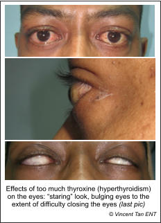 "Effects of too much thyroxine (hyperthyroidism) on the eyes: ""staring"" look, bulging eyes to the extent of difficulty closing the eyes (last pic)  © Vincent Tan ENT"