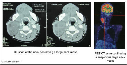 CT scan of the neck sonfirming a large neck mass © Vincent Tan ENT PET CT scan confirming a suspicious large neck mass